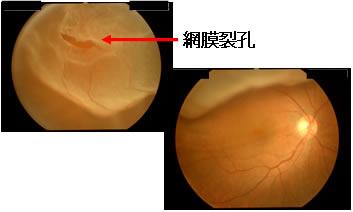 裂孔原性網膜剥離