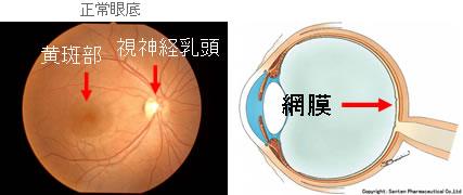 その他の眼の病気