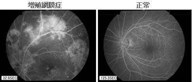 蛍光眼底造影検査
